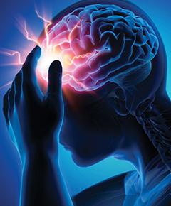 Episodic Cluster Headaches